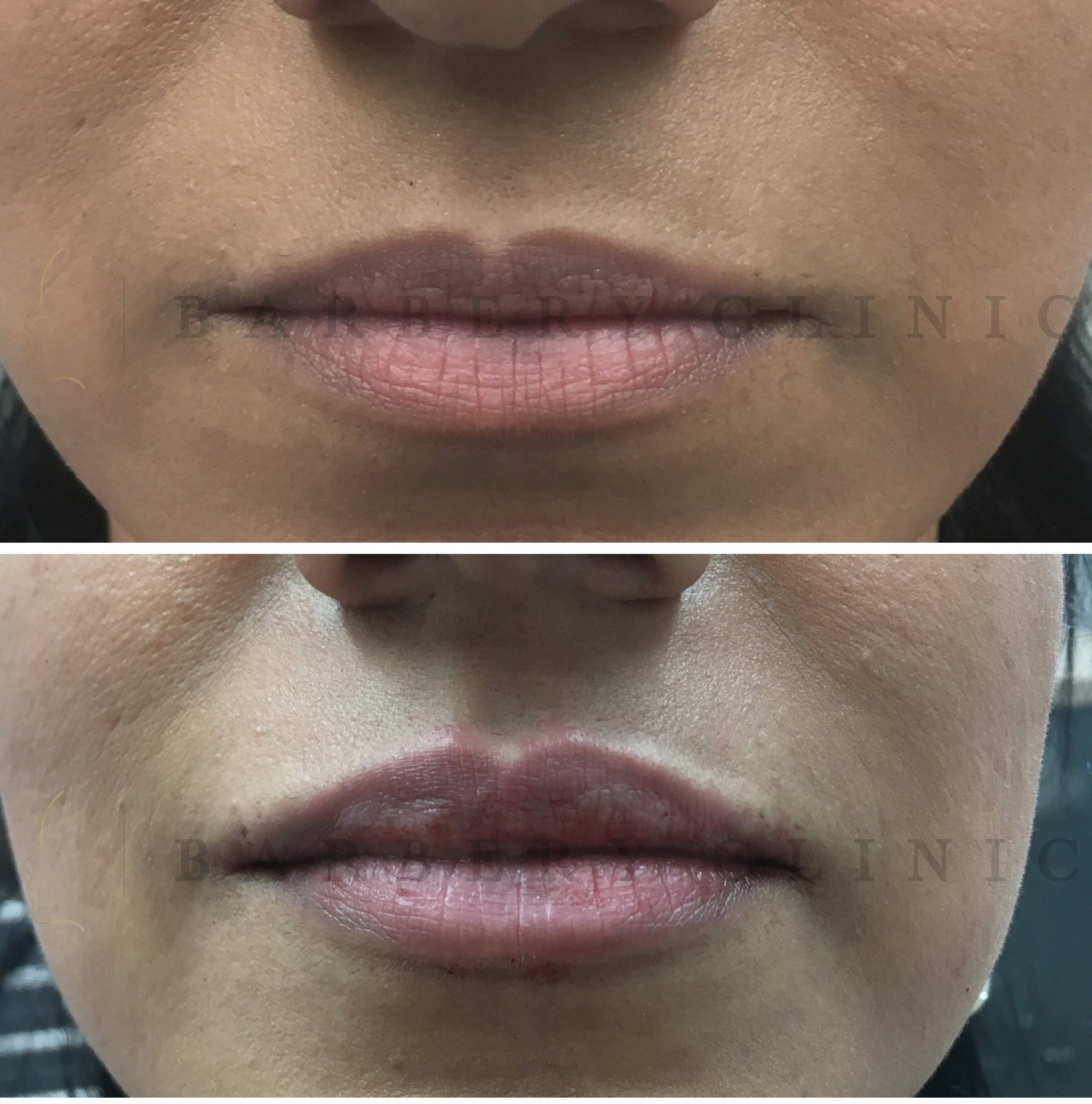 Subtiel Vollere Lippen